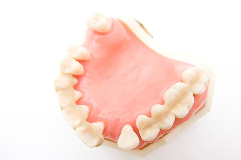 インプラントを手掛ける歯科医として、残念なことがあります。